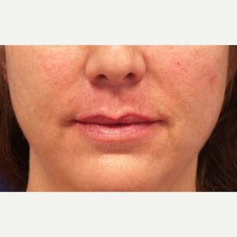 45-54 year old woman treated with Lip Augmentation after 3675133