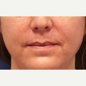 45-54 year old woman treated with Lip Augmentation before 3675133