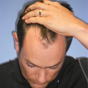 25-34 year old man treated with FUE Hair Transplant before 1872433
