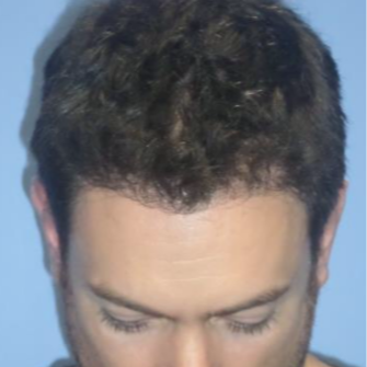 25-34 year old man treated with FUE Hair Transplant after 1872433