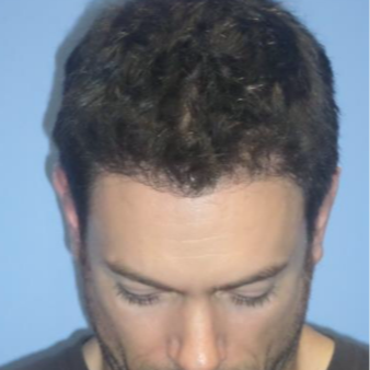 25-34 year old man treated with FUE Hair Transplant 1872433