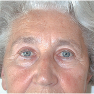 Eyelid Surgery after 3720145