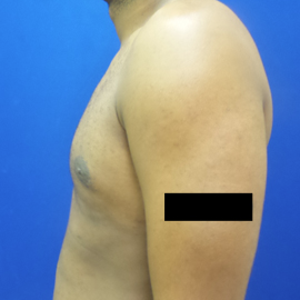 Male Breast Reduction after 3565818