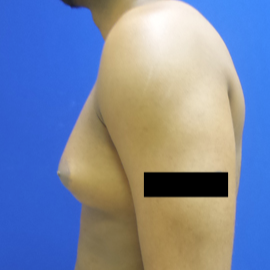 Male Breast Reduction before 3565818