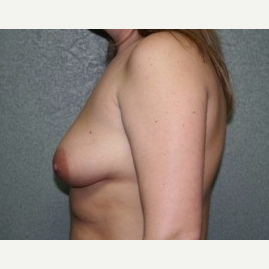 25-34 year old woman treated with Breast Lift before 3339562