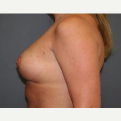 25-34 year old woman treated with Breast Lift after 3339562
