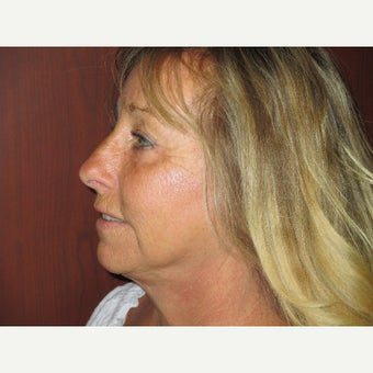 65-74 year old woman treated with Facelift and Blepharoplasty 1552420