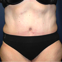 49 year old woman treated with Tummy Tuck after 3578451
