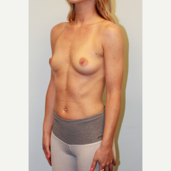 25-34 year old woman treated with Breast Implants before 3027317