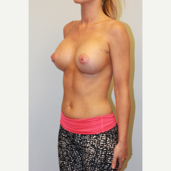 25-34 year old woman treated with Breast Implants after 3027317