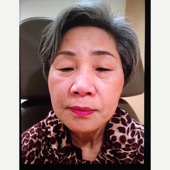 55-64 year old woman treated with Asian Eyelid Surgery before 3726495