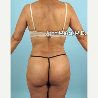 35-44 year old woman treated with Liposuction of flanks, back and sacrum after 3659818