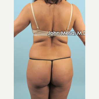 35-44 year old woman treated with Liposuction of flanks, back and sacrum before 3659818