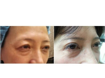 41 year old lady for correction of asian eyelid surgery