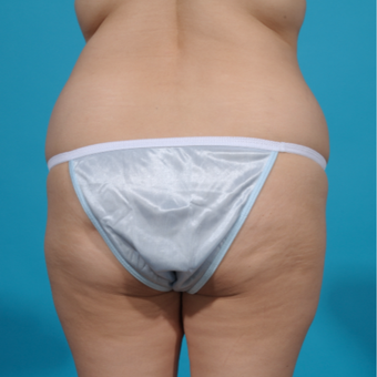 25-34 year old woman treated with Brazilian Butt Lift before 3282714