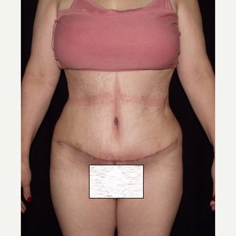 55-64 year old woman treated with Tummy Tuck after 3647145