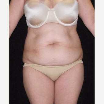 55-64 year old woman treated with Tummy Tuck before 3647145