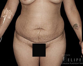 25-34 year old woman treated with Tummy Tuck before 3413433