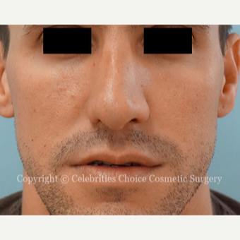 25-34 year old man treated with Rhinoplasty after 3337689