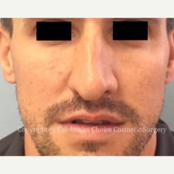 25-34 year old man treated with Rhinoplasty before 3337689