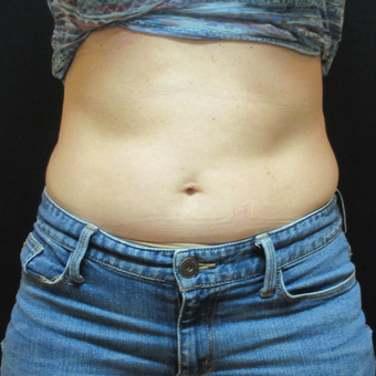 45-54 year old woman treated with CoolSculpting before 3500804