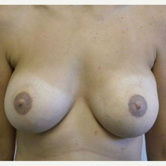 35-44 year old woman treated with Latissimus Flap Breast Reconstruction after 1940774