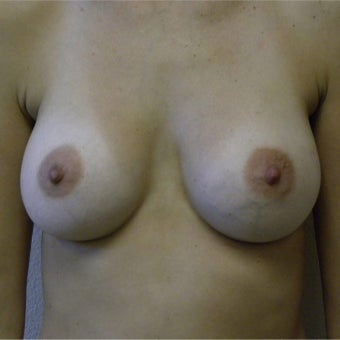 35-44 year old woman treated with Latissimus Flap Breast Reconstruction before 1940774
