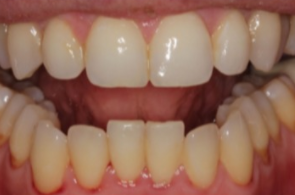 38 year old man treated with Lingual Braces