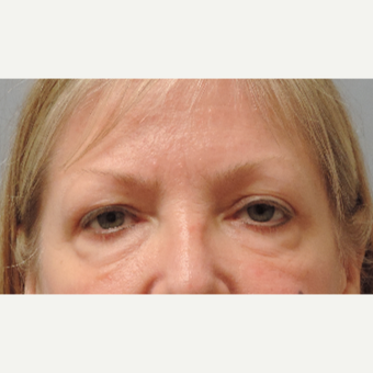 45-54 year old woman treated with Eye Bags Treatment before 3448316