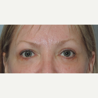 45-54 year old woman treated with Eye Bags Treatment after 3448316