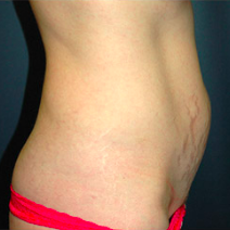 35 year old woman treated with Tummy Tuck before 3578520
