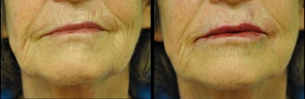 Juvederm and Belotero for Lip Augmentation before 981995