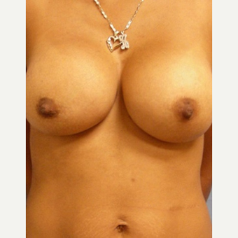 25-34 year old woman treated with Breast Augmentation after 3529686