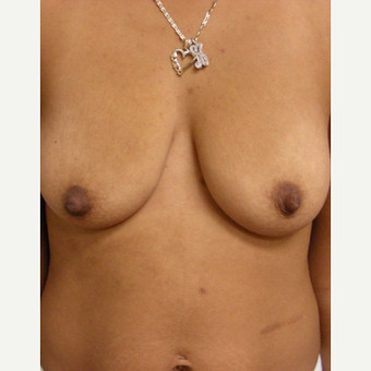 25-34 year old woman treated with Breast Augmentation before 3529686