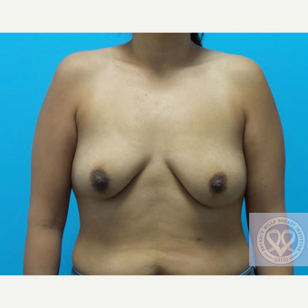 25-34 year old woman treated with Mentor Breast Implants before 3725894
