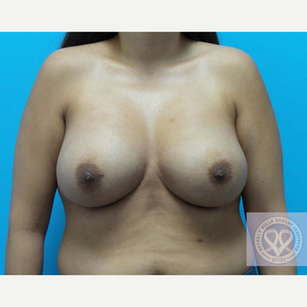 25-34 year old woman treated with Mentor Breast Implants after 3725894