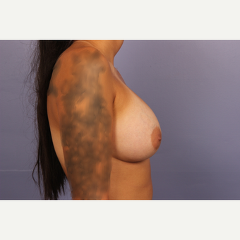 18-24 year old woman treated with Breast Augmentation after 3502479