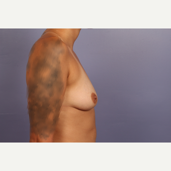 18-24 year old woman treated with Breast Augmentation before 3502479