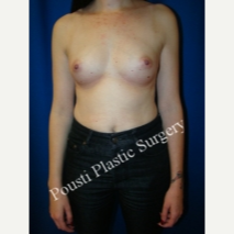35-44 year old woman treated with Mentor Breast Implants before 3325656
