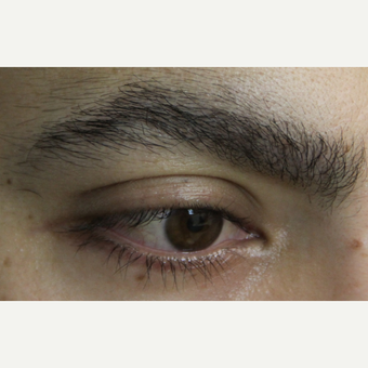 Eyebrow Transplant Result after 3651753