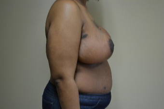 35-44 year old woman treated with Breast Reduction 1809039