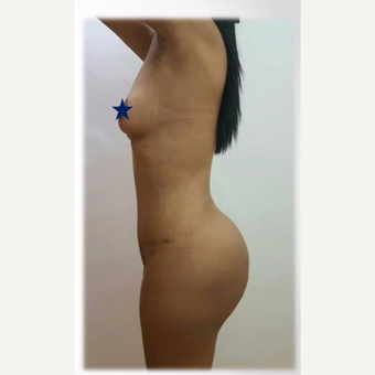 25-34 year old woman treated with Tummy Tuck- liposuction-BBL, after 2 months post op. after 3730846