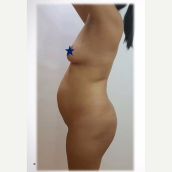 25-34 year old woman treated with Tummy Tuck- liposuction-BBL, after 2 months post op. before 3730846