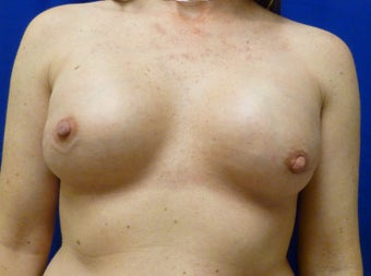 Bilateral Nipple Sparing Mastectomies via ILateral Incision and Delayed Reconstruction with Expanders and Alloderm after 1263164