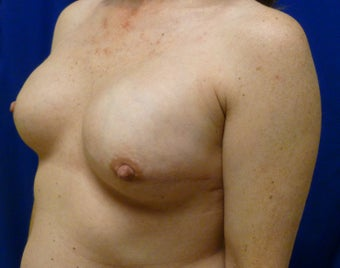Bilateral Nipple Sparing Mastectomies via ILateral Incision and Delayed Reconstruction with Expanders and Alloderm 1263164