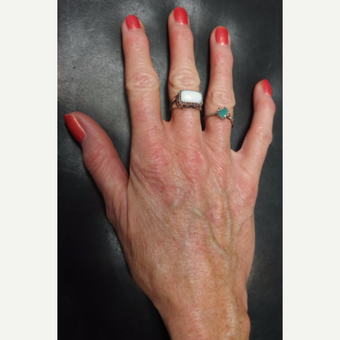 55-64 year old woman treated with Radiesse for Hand Volumization before 3297884