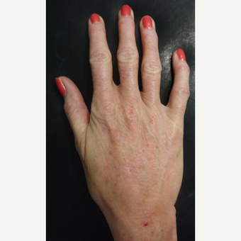 55-64 year old woman treated with Radiesse for Hand Volumization after 3297884