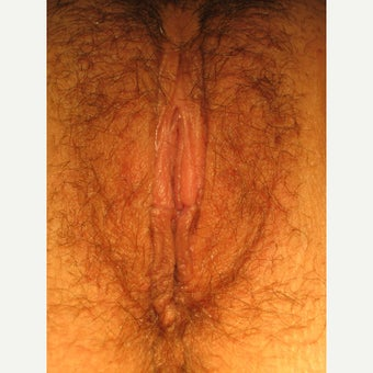25 year-old with cosmetic and functional issues with large labia, V-wedge LP after 2074585