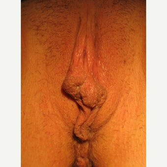 25 year-old with cosmetic and functional issues with large labia, V-wedge LP before 2074585