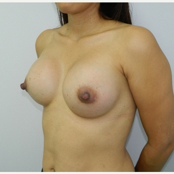 35-44 year old woman treated with Breast Augmentation after 3045208